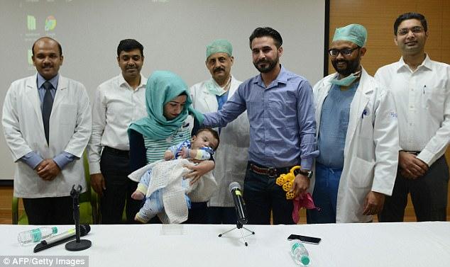 Bayi Pengidap Polymelia di India Berhasil Dioperasi - Foto 1