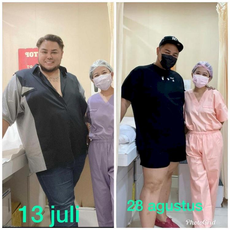 7 Potret Transformasi Ivan Gunawan Setelah Diet, Terlihat Lebih Kurus - Foto 1